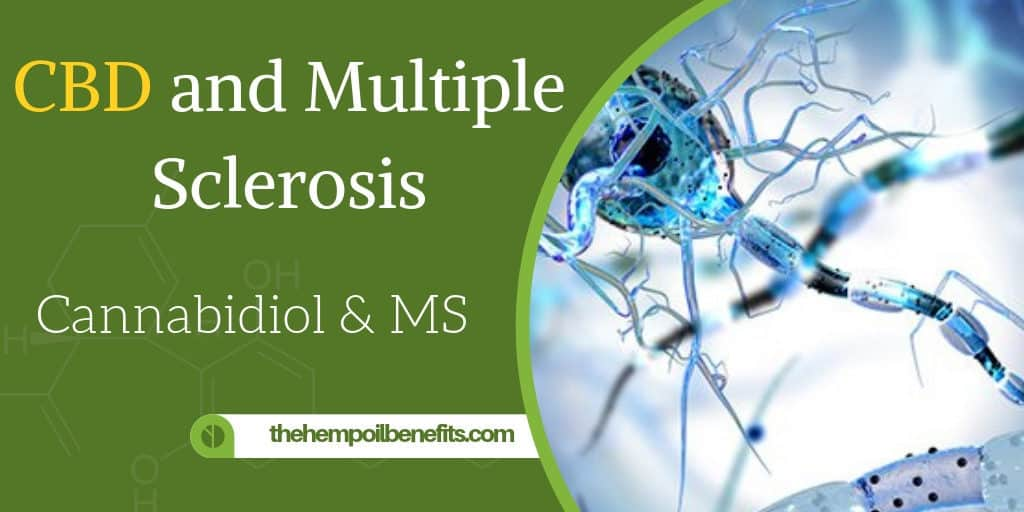 CBD and Multiple Sclerosis & Cannabidiol & MS