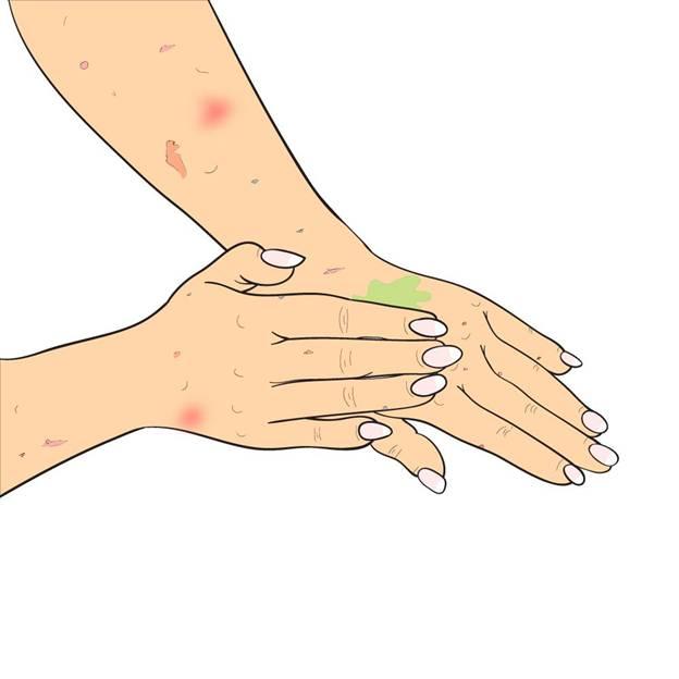 hemp-oil-psoriasis