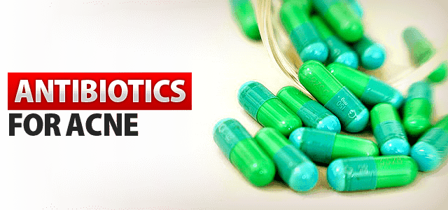 ANTIBIOTICS-FOR-ACNE