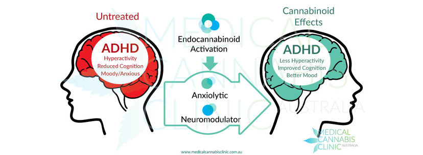 cannabinoids effects adhd