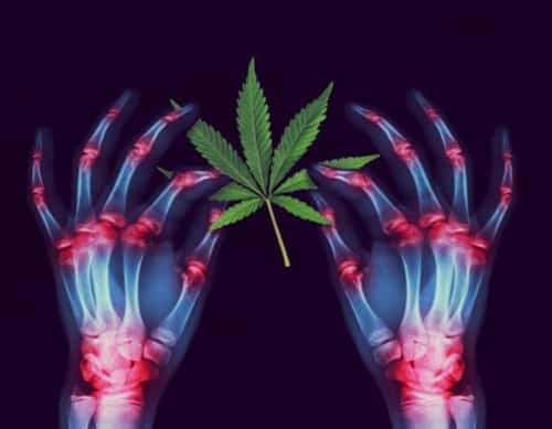 cannabis inflammation